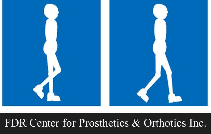 FDR Center for Prosthetics